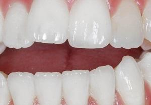 دانلود تحقیق آشنایی با دندان